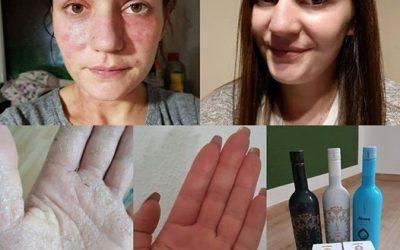 Asia Bednarz vince le Allergie alla Pelle con prodotti DuoLife